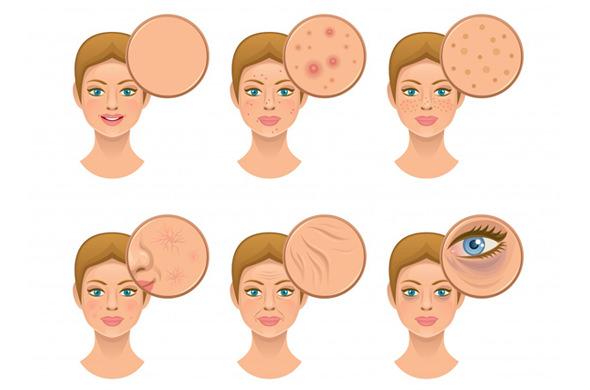 ニキビに効く化粧水6つの正しい知識と選び方